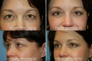 best upper lower lid rejuvenation Surgery Oregon