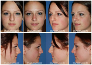 best rhinoplasty patient in portand oregon