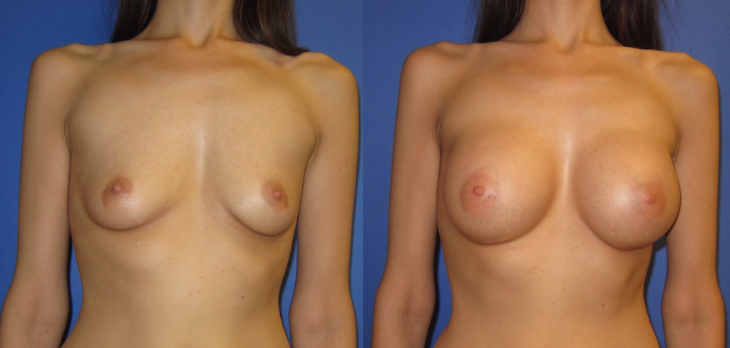 breast-augmentation-photos